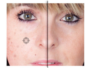 Do photo touch-up for even skin tones & remove blemishes, wrinkles & spots within Passport Xpress